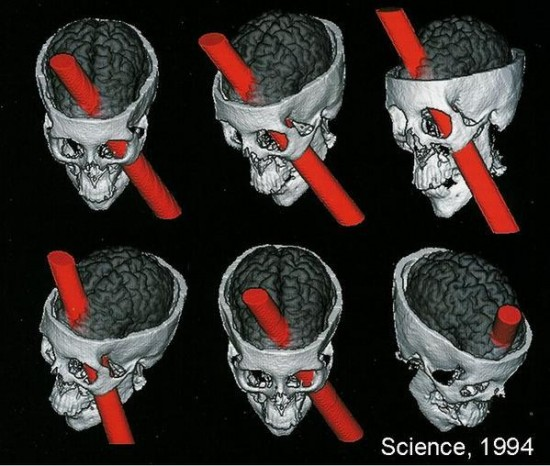 Phineas Gage craneo   ...